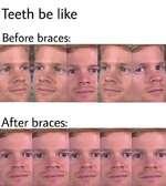 Teeth be likeBefore braces:After braces: